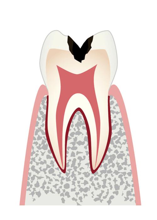 歯の内部まで進行したむし歯